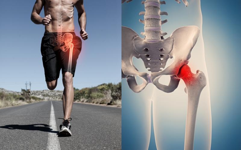 Dolore all'anca: cosa fare quando si manifesta